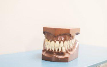 Dentures-Teeth Mold- Local Colorado Springs Dentist