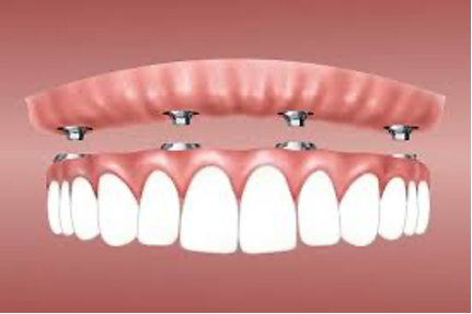 Implant Retained Dentures - Denture Services - Colorado Springs